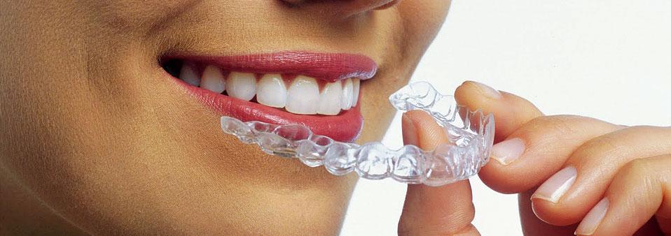 Clear Aligner - ortodoncja
