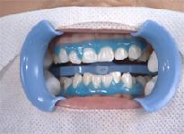 Wybielanie zębów krok 3