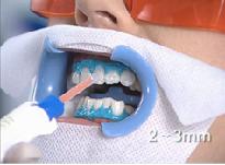 Wybielanie zębów krok 5