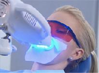 Wybielanie zębów krok 6